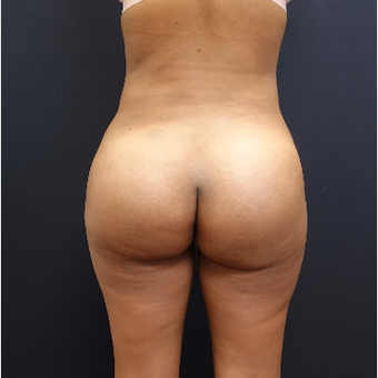 25-34 year old woman treated with Liposculpture after 3731879