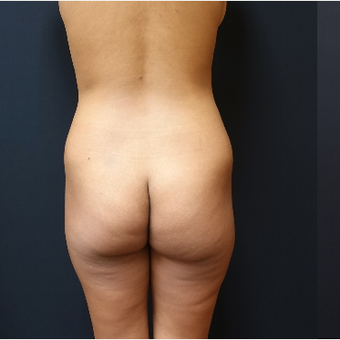 25-34 year old woman treated with Liposculpture before 3731879