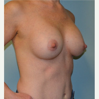 45-54 year old woman treated with Breast Augmentation after 3245041