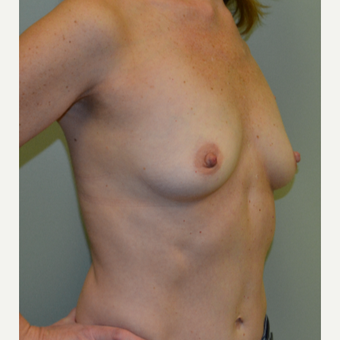 45-54 year old woman treated with Breast Augmentation before 3245041