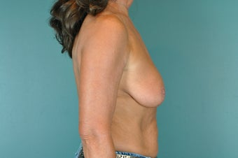 Breast Lift before 922953