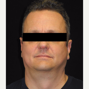 45-54 year old man treated with MACS Face lift after 3748001