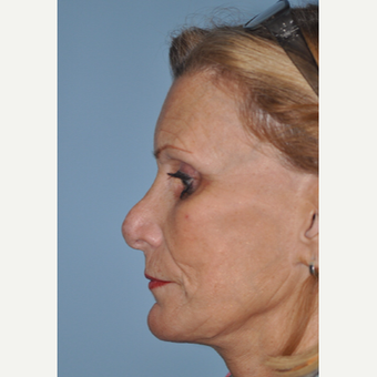 65-74 year old woman treated with Revision Rhinoplasty before 3332482