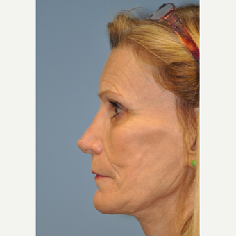 65-74 year old woman treated with Revision Rhinoplasty after 3332482