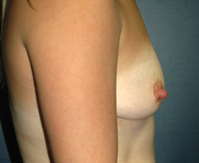 Breast Implants before 3545109