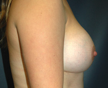 Breast Implants after 3545109