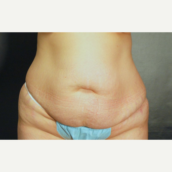 25-34 year old woman treated with Tummy Tuck before 3220328