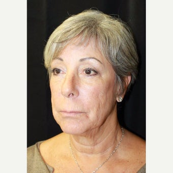 65-74 year old woman treated with Cheek Augmentation before 2596672
