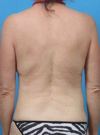 55-64 year old woman treated with Liposuction