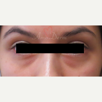 Patient treated with Restylane for dark circles under the eyes before 3357251