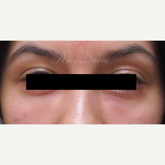 Patient treated with Restylane for dark circles under the eyes after 3357251