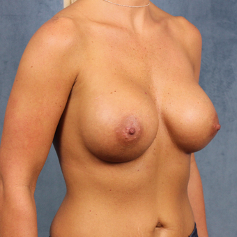 breast augmentation with silicone gel breast implants under the muscle after 3538428