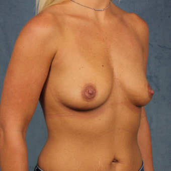 breast augmentation with silicone gel breast implants under the muscle before 3538428