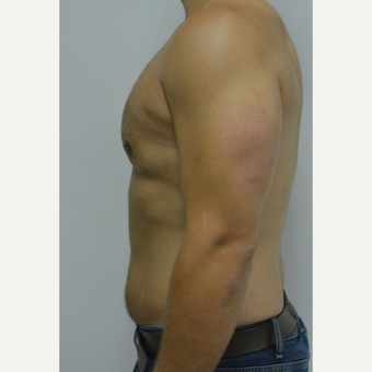 25-34 year old man treated with Male Breast Reduction after 3070587