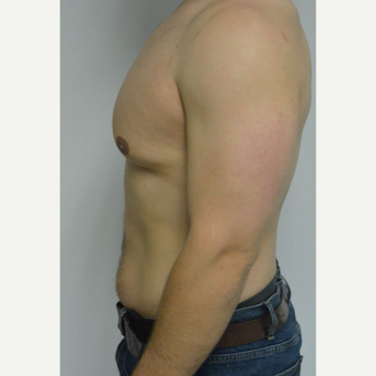 25-34 year old man treated with Male Breast Reduction before 3070587