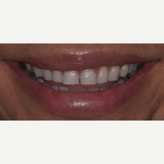 45 year old woman treated with Porcelain Veneers before 3543012