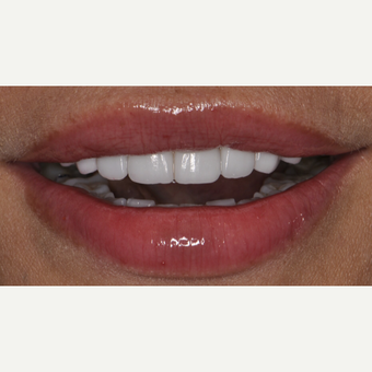 45 year old woman treated with Porcelain Veneers after 3543012