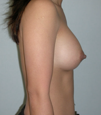 Breast Implants after 1071035