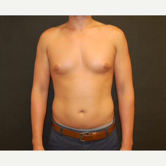 25-34 year old male treated with Male Breast Reduction before 3180922