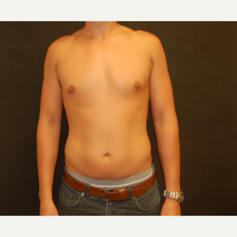 25-34 year old male treated with Male Breast Reduction after 3180922
