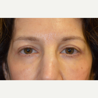 55 year old female underwent lower blepharoplasty, upper blepharoplasty, and eyelid ptosis surgery.
