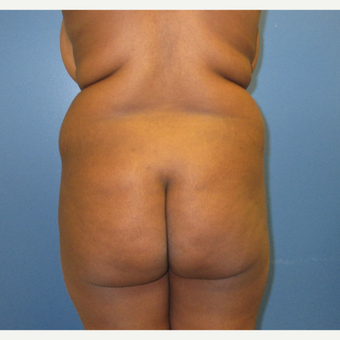 25-34 year old woman treated with Brazilian Butt Lift before 3725271