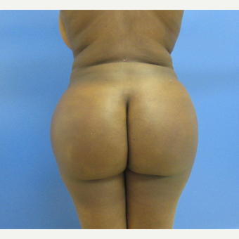25-34 year old woman treated with Brazilian Butt Lift after 3725271