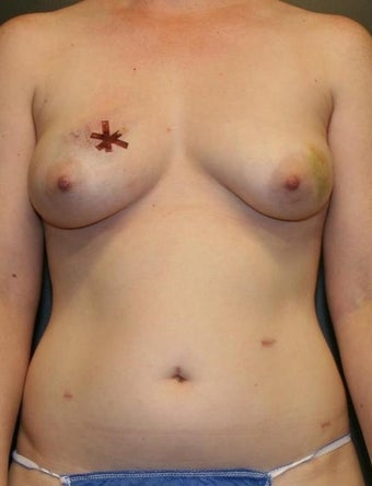 39 y/o - Immediate Bilateral DIEP Flap Breast Reconstruction