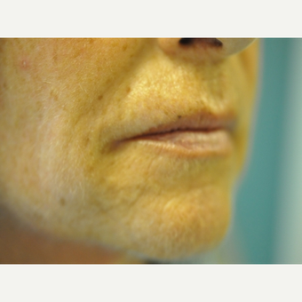 45-54 year old woman treated with Juvederm after 2712912