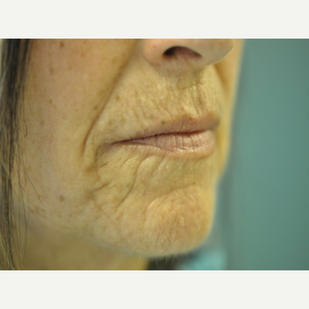 45-54 year old woman treated with Juvederm before 2712912