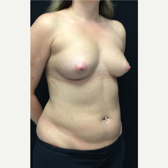 25-34 year old woman treated with Breast Augmentation before 3583245