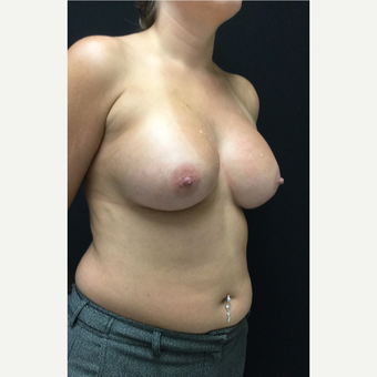 25-34 year old woman treated with Breast Augmentation after 3583245