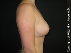 Female with Breast Implant Removal 1129466