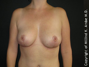 Female with Breast Implant Removal after 1129466