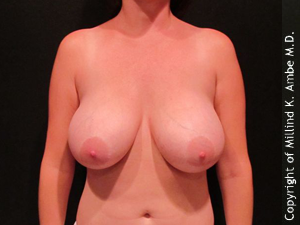 Female with Breast Implant Removal before 1129466