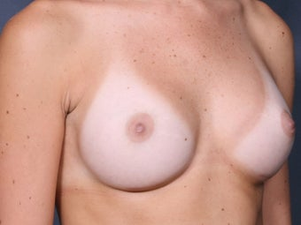 Nipple after 1053971