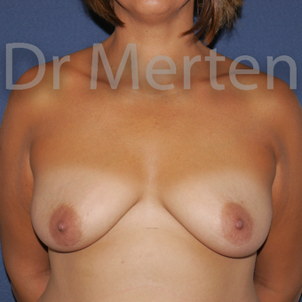 25-34 year old woman treated with Breast Lift with Implants before 3592510