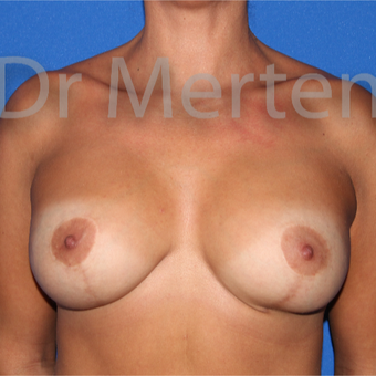 25-34 year old woman treated with Breast Lift with Implants after 3592510