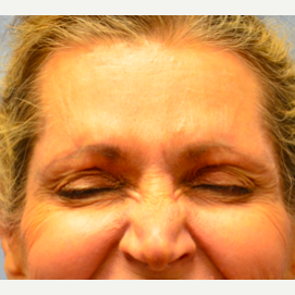 65-74 year old woman treated with Botox after 2441724