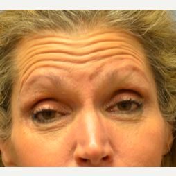 65-74 year old woman treated with Botox before 2441724