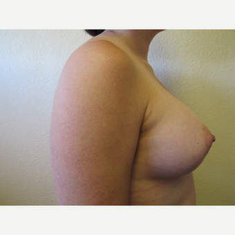 25-34 year old woman treated with Mentor Breast Implants after 3407186