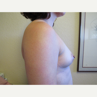 25-34 year old woman treated with Mentor Breast Implants before 3407186