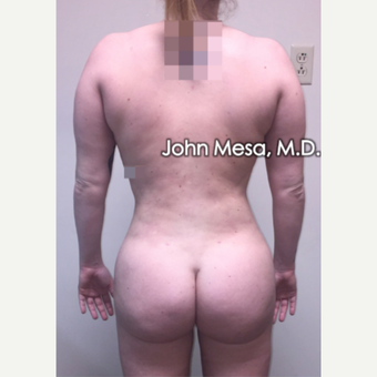 25-34 year old woman treated with Brazilian Butt Lift after 3777599