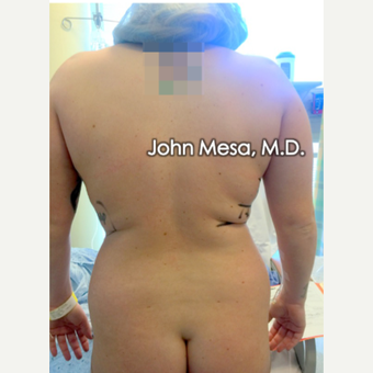 25-34 year old woman treated with Brazilian Butt Lift before 3777599