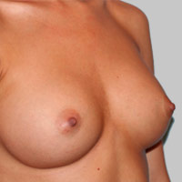 25-34 year old woman with Structured Ideal Implants after 3129806