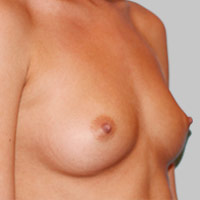 25-34 year old woman with Structured Ideal Implants before 3129806