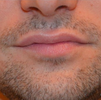 restylane silk in a male before 2165304
