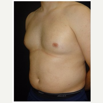 25-34 year old man treated with Male Breast Reduction before 3186014