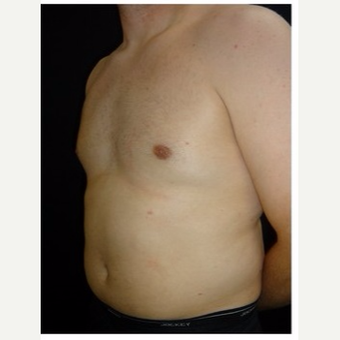 25-34 year old man treated with Male Breast Reduction after 3186014