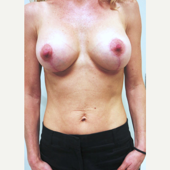 35-44 year old woman treated with Breast Lift with Implants after 3681727